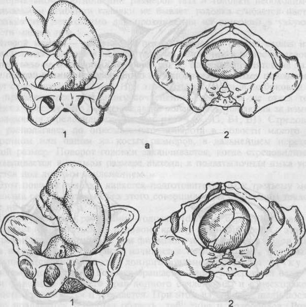 Тазовое предлежание плода (ягодичное) (37 фото): ножное предлежание и роды, причины и чем опасно – почему делают кесарево сечение при таком положении ()