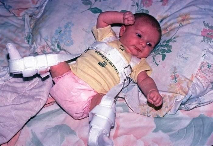 Дисплазия тазобедренного сустава у новорожденных лечение массаж