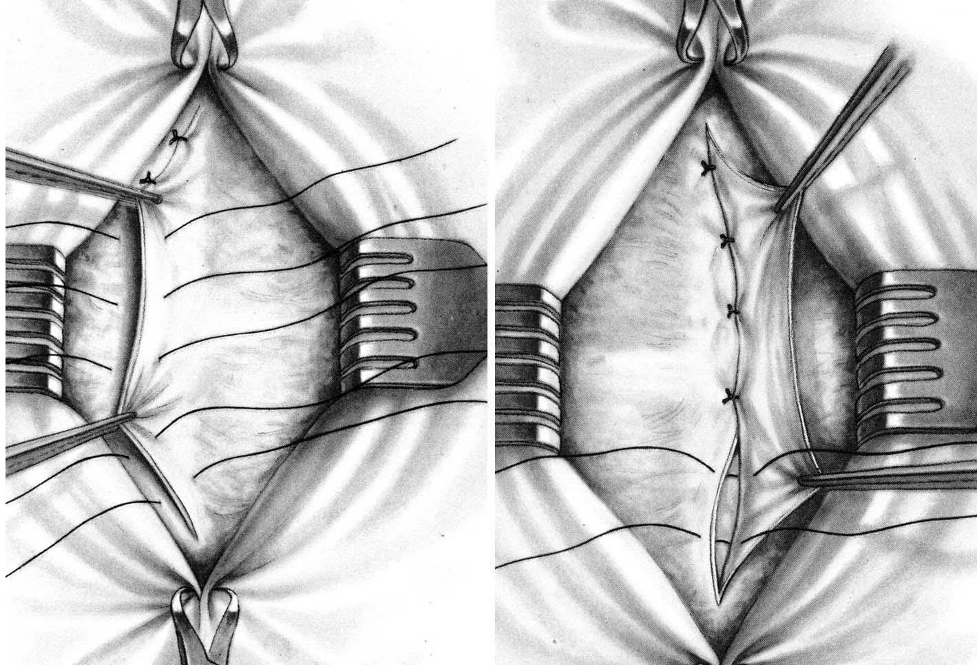 Пупочная грыжа у детей: фото, симптомы, лечение без операции и удаление