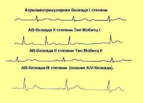Нарушение внутрижелудочковой проводимости сердца классификация, причины, признаки, лечение