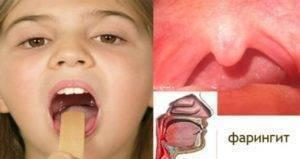 Рыхлое горло у ребенка - что это значит и чем лечить заболевание?