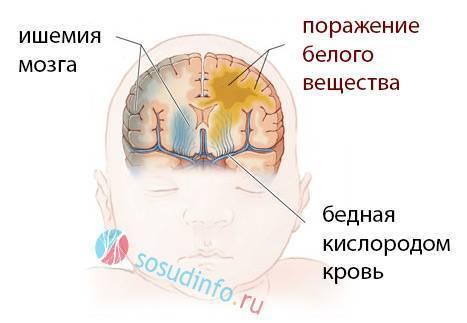Ишемия головного мозга у новорожденного - последствия и лечение поражения у детей | заболевания | vpolozhenii.com