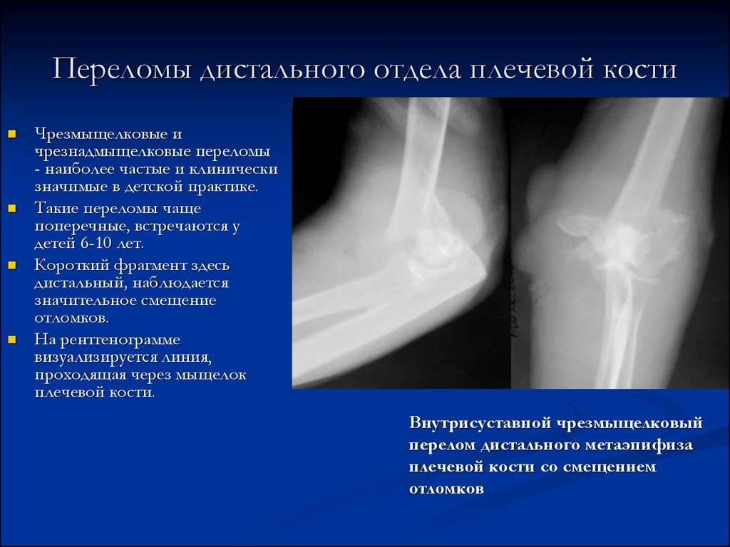 Чрезмыщелковый перелом плечевой кости у детей – реабилитация