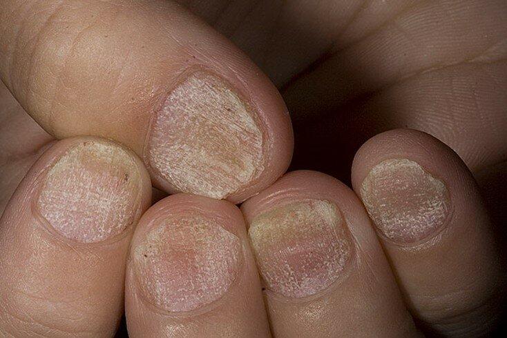 Микоз гладкой кожи: код мкб-10, фото симптомов, особенности лечения