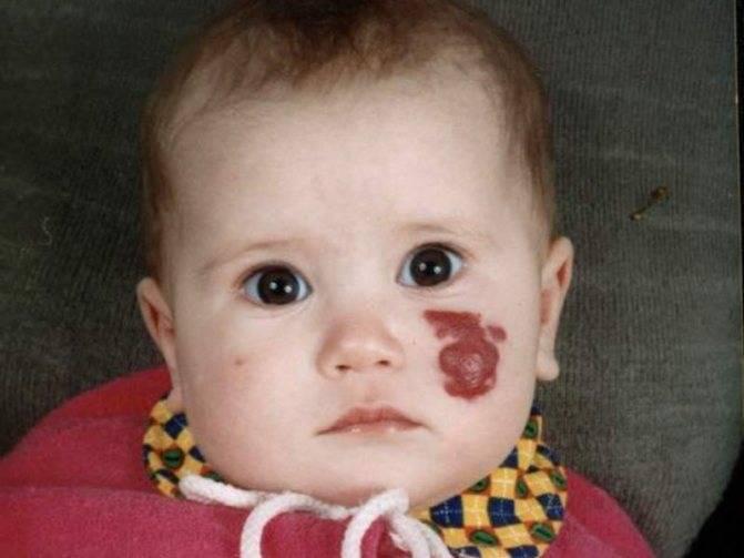 Диагностика и лечение, монгольские (монголоидные) пятна у новорожденных детей: причины появления - про папилломы
