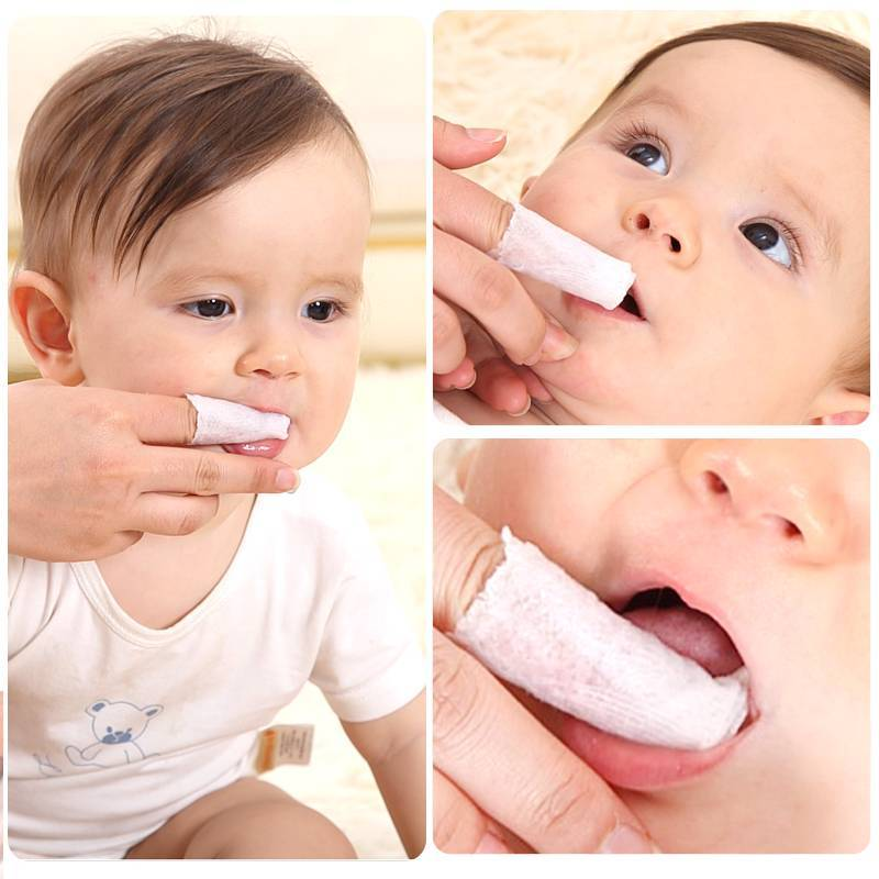 Как проявляется молочница у грудничка во рту: причины с фото