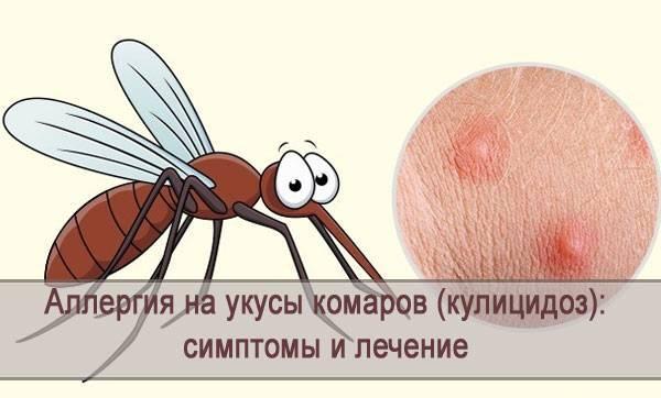 Аллергия на укусы комаров: симптомы и методы лечения кулицидоза