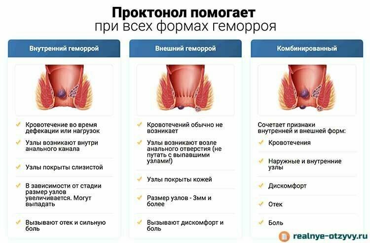 Геморрой у детей: причины, симптомы, как выглядит, методы лечения