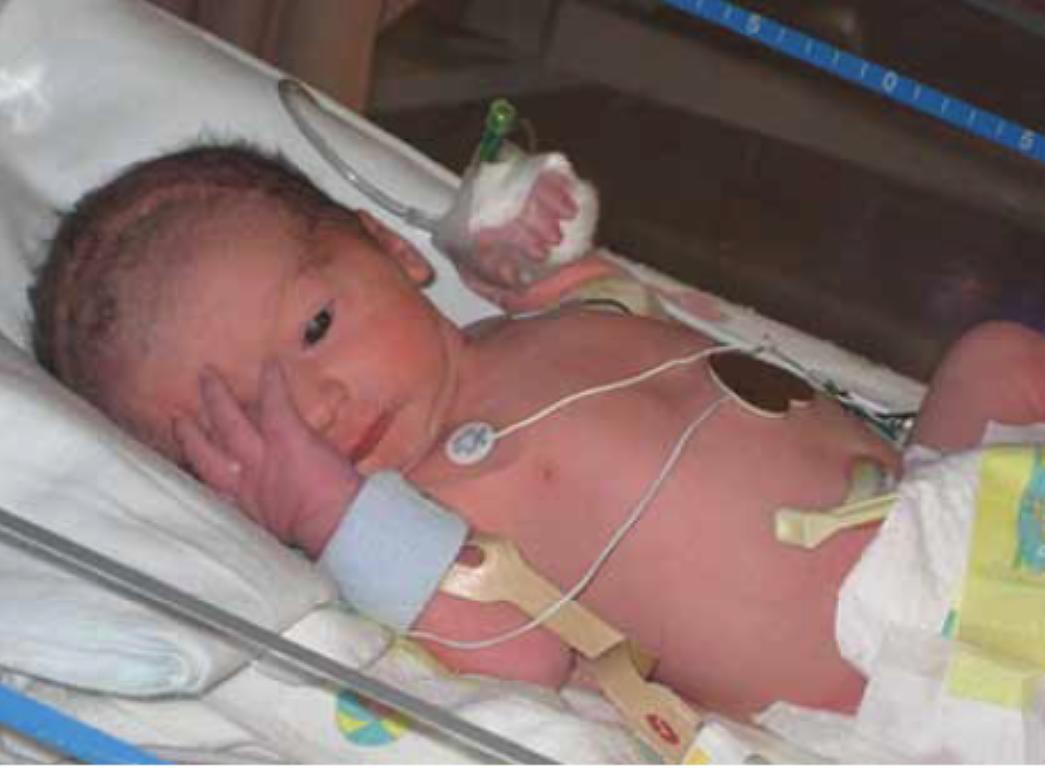 Пилороспазм у новорожденных — симптомы, особенности диагностики и способы лечения
