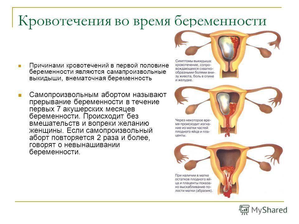 На какой день после зачатия бывает имплантационное кровотечение
