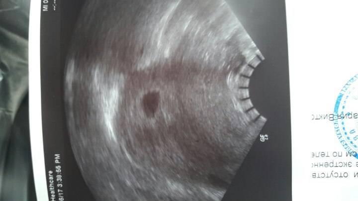 На 11 день после переноса эмбрионов коричневые выделения и болит низ живота