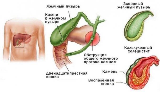 Причины и лечение холецистита у детей