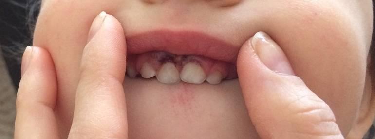 Гематома на десне у ребенка — зубы