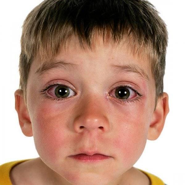 Аллергический конъюнктивит у ребенка: симптомы и лечение oculistic.ru аллергический конъюнктивит у ребенка: симптомы и лечение