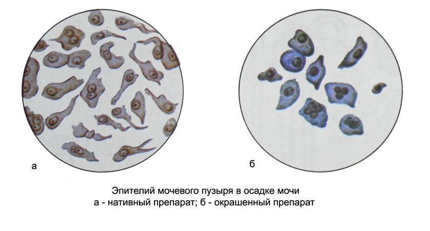 Эпителий в моче — нормы, причины повышения