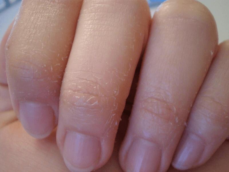 У ребенка на пальцах облазит кожа - почему шелушится кожа и что делать? • твоя семья - информационный семейный портал