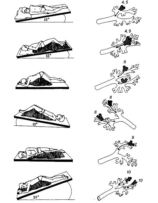 Массаж при бронхите у взрослых: виды и особенности проведения, показания и противопоказания, польза и вред