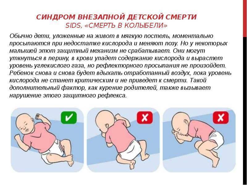 Что нужно знать о свдс — синдроме внезапной детской смерти