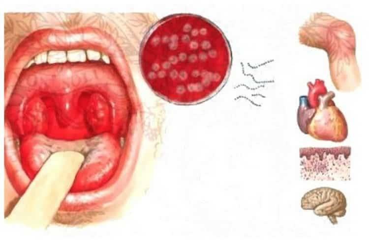 Белый налет в горле: причины и лечение. у детей и взрослых