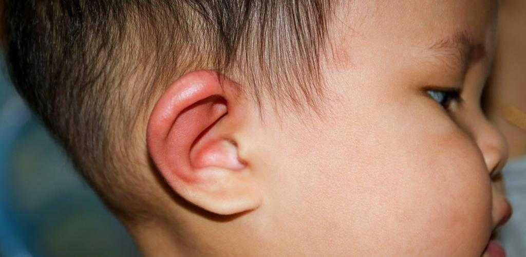 Почему у ребенка опухают и краснеют уши: причины и лечение