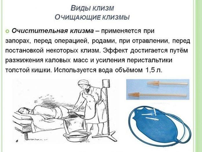 Как сделать клизму новорожденному? - uchieto.ru - как научиться...