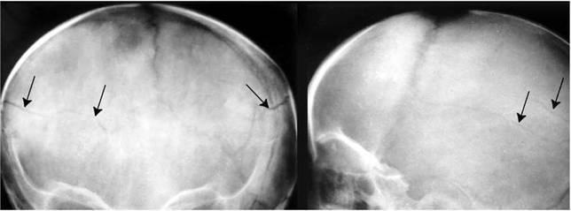 Перелом черепа у ребенка — последствия, симптомы, лечение