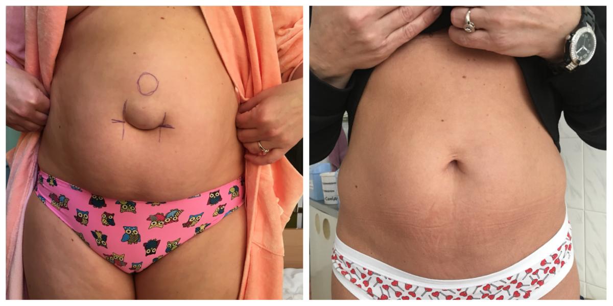 Пупочная грыжа у новорожденных: симптомы, причины, лечение