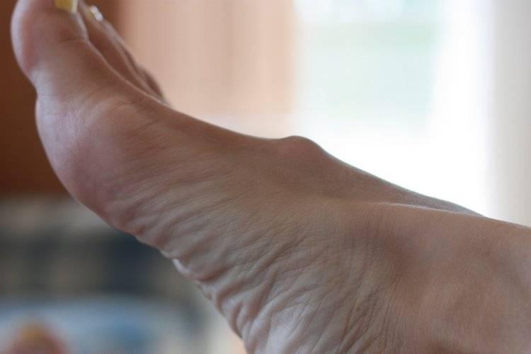 Гигрома на ноге: лечение, фото, симптомы, чем опасна