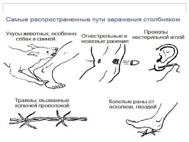 Столбняк у человека: симптомы, лечение, инкубационный период