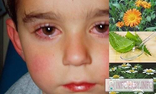 Конъюнктивит у ребенка: лечение в домашних условиях (капли и народные средства)