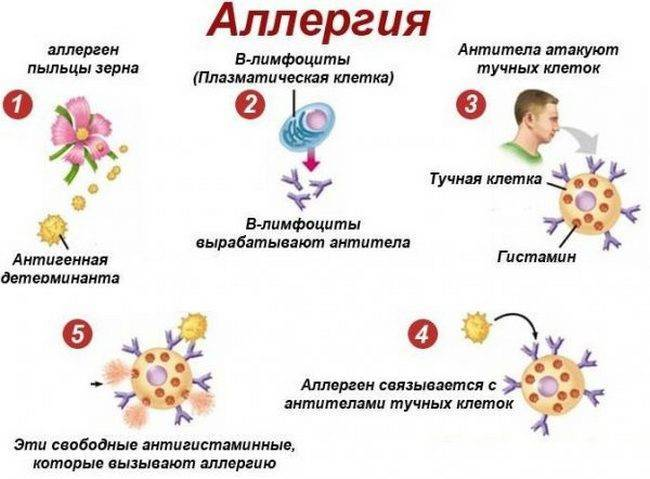 Как узнать на что аллергия у ребенка: способы определения потенциального аллергена