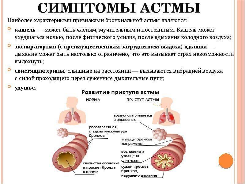 Бронхиальная астма у детей: симптомы, причины, лечение, профилактика приступов