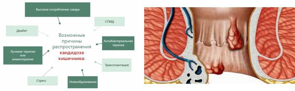 Грибок: фото с описанием симптомов, лечение, причины и профилактика