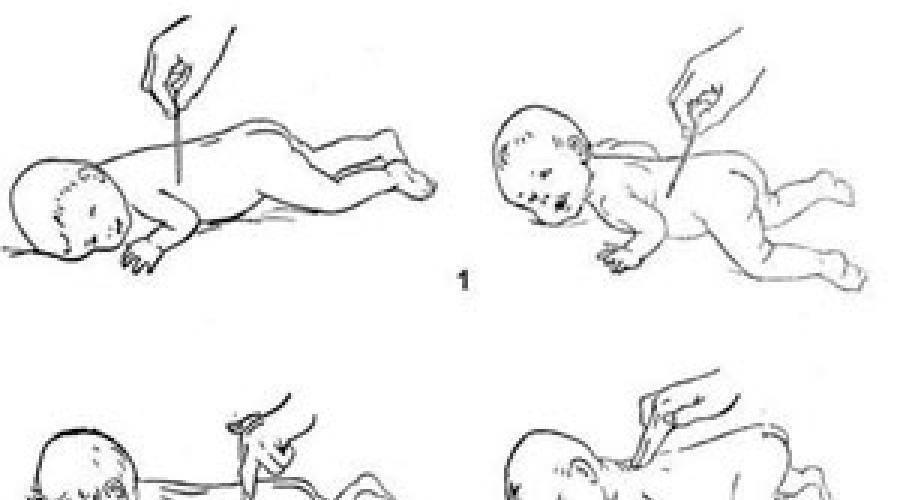 Рефлексы новорожденного у ребенка