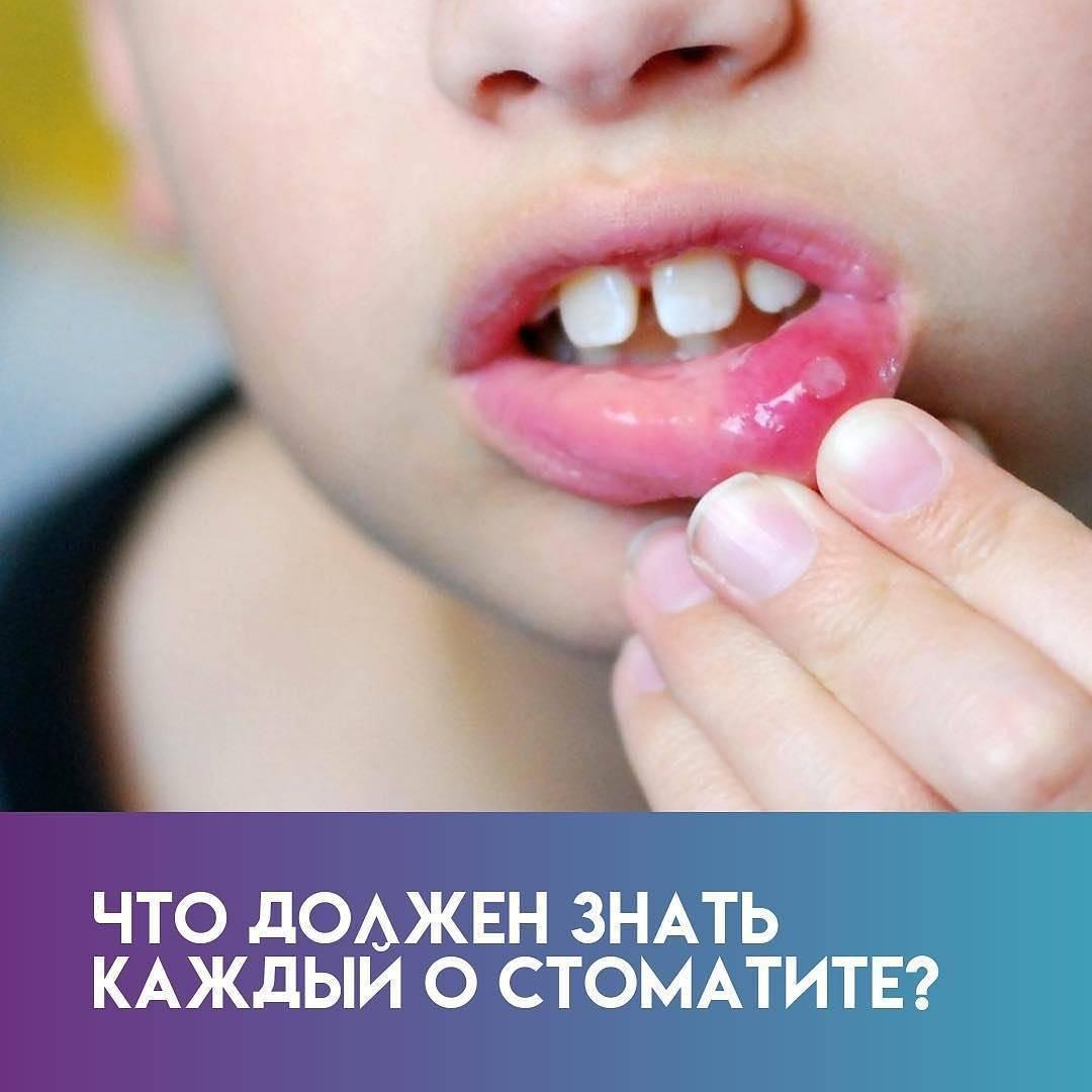 Сколько лечится стоматит у детей – как выглядит и сколько длится дней терапия стоматита у ребенка - здоровыйрот