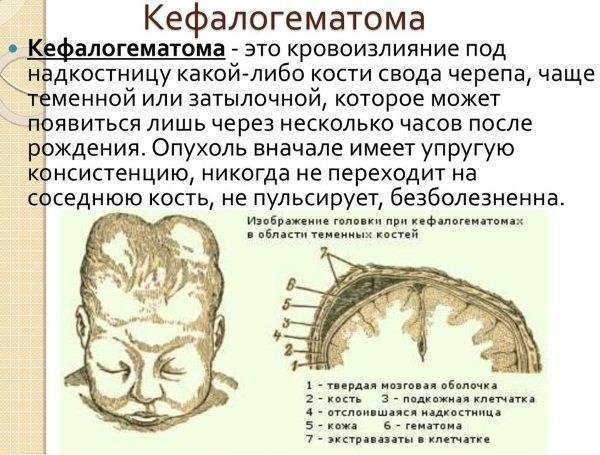 Гематома у новорожденного на голове после родов: причины, лечение, опасна ли она? - вся медицина