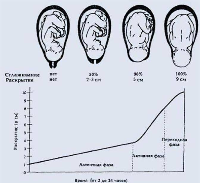 Раскрытие шейки матки на 1,2 пальца перед родами: как ускорить открытие, упражнения