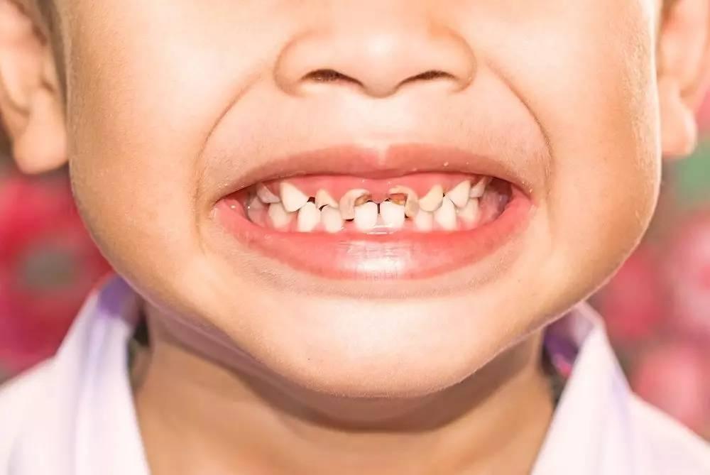 Желтый налет на зубах у ребенка: почему появляются пятна и что делать? | симптомы | vpolozhenii.com