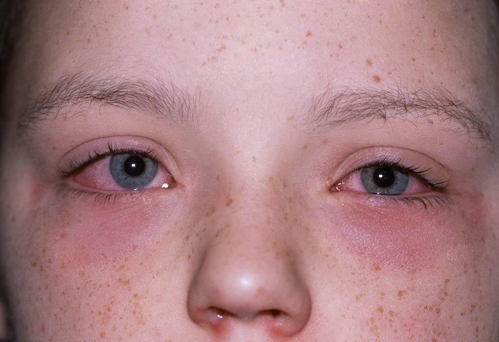 Аллергия на глазах у ребенка