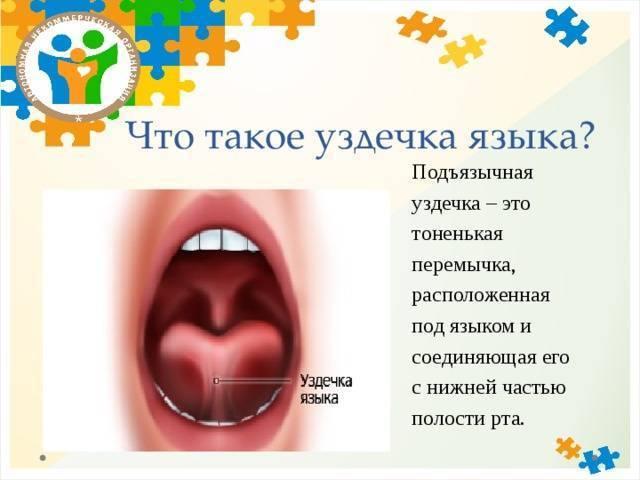 Короткая уздечка языка – причина проблем развития у детей