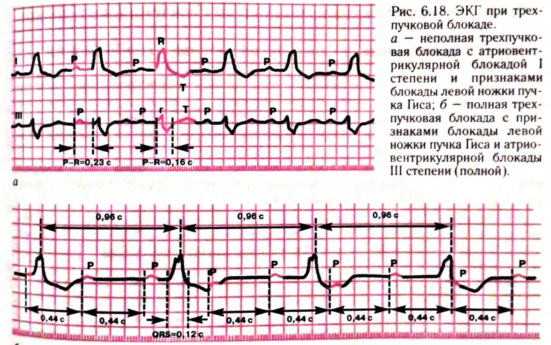 Нарушение внутрижелудочковой проводимости сердца у детей: что это, опасно ли