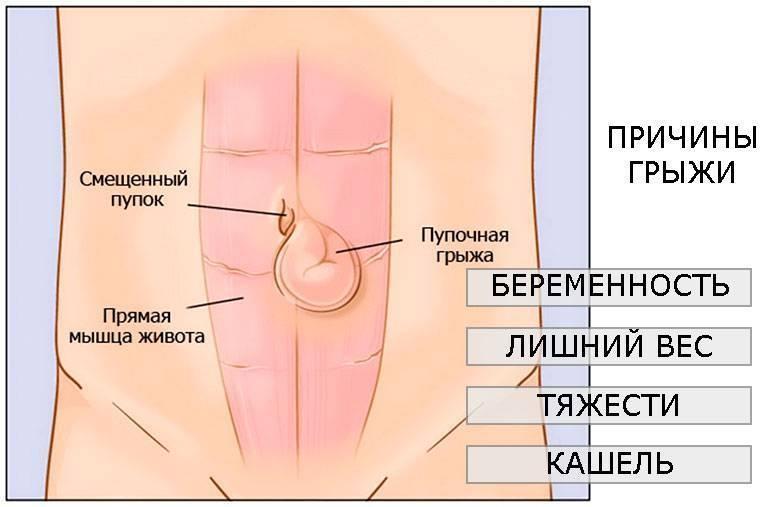 Пупочная грыжа: диагностика, лечение, профилактика