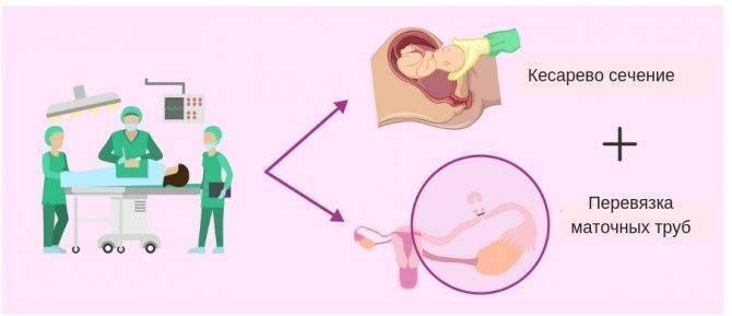 Перевязка маточных труб при кесаревом сечении, последствия