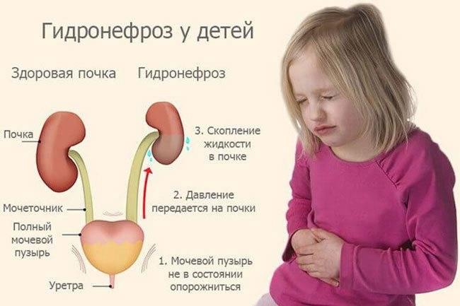 Гипоплазия эмали зубов у детей - причины и лечение