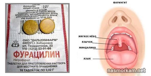 Эффективные средства для полоскания горла ребенку при ангине