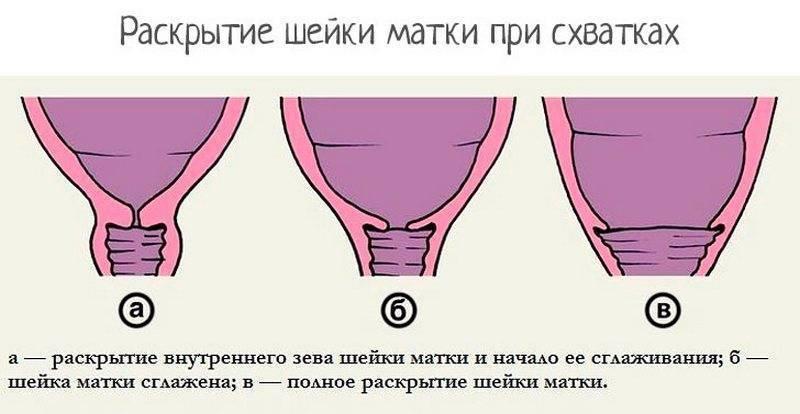 Что означает диагноз «цервикальный канал расширен» во время беременности и при ее отсутствии?