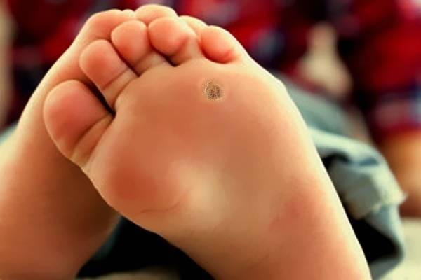 Как избавиться от бородавки на ноге - 4 способа удаления (лечения)