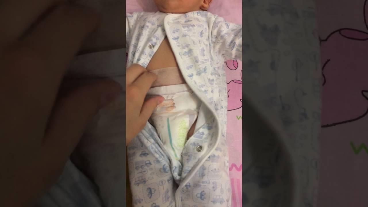Зачем нужен пластырь для пупочной грыжи у новорожденных и как правильно его наклеить? - все о суставах