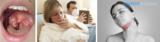 Острый герпетический (герпесный) стоматит у детей: фото, симптомы, лечение