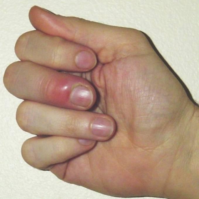 Нарыв на пальце у ребенка возле ногтя: как лечить и что делать, если ранка гноится?